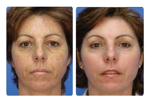 Microdermabrasion-Before-and-After
